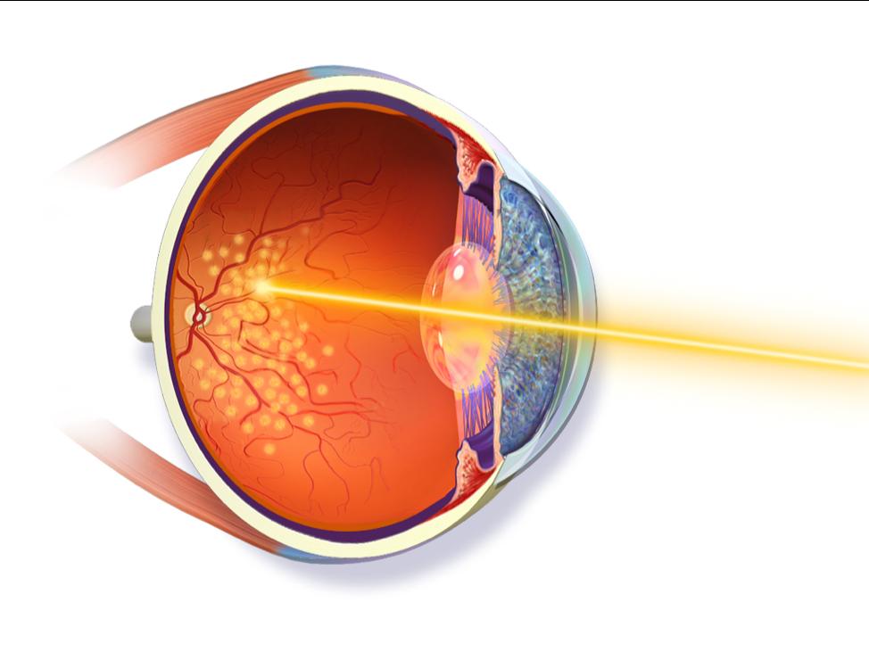 retina specialist