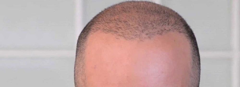 best hair transplant in Kolkata