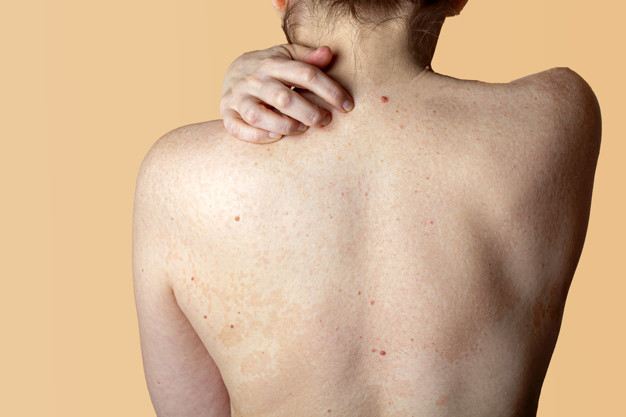 Seborrheic Dermatitis in India